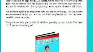 Eczema -eczema cause treatment - Cure fast Thumbnail