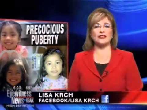 Precocious puberty - YouTube