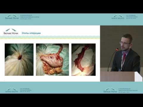 Рак пищевода: симптомы, лечение