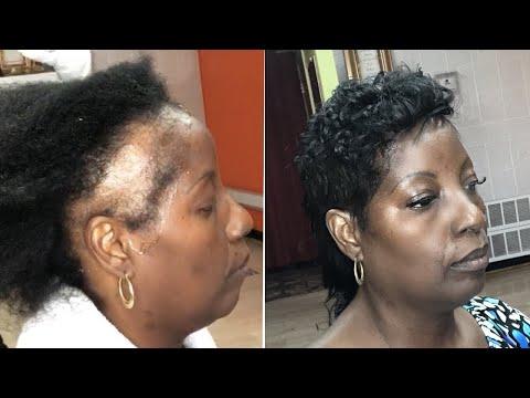 alopecia-mohawk-haircut-3-week-update-|-flat-iron-curls-&-finger-waves