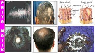 Grow Long Hair, 100% Natural Hair Loss Treatment, Cure Baldness, Remove Dandruff Thin Hair Hair Fall
