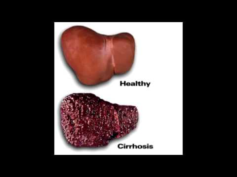 Most Common: Late Cyanotic Shunt & Liver Disease - Rapid Review