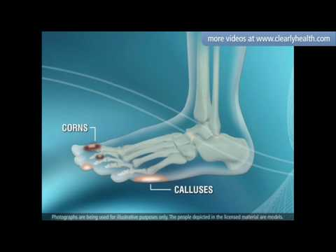 Diabetes: Foot care