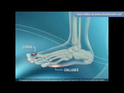 Diabetes: Foot care