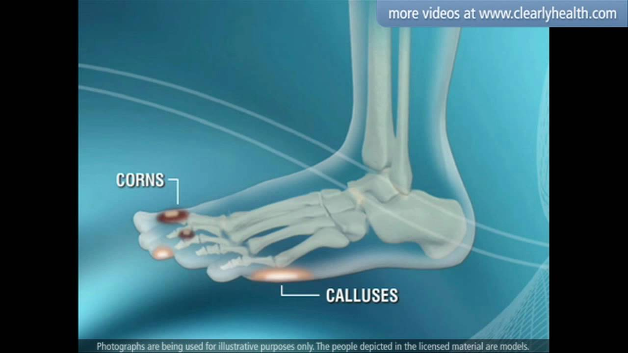 foot care video