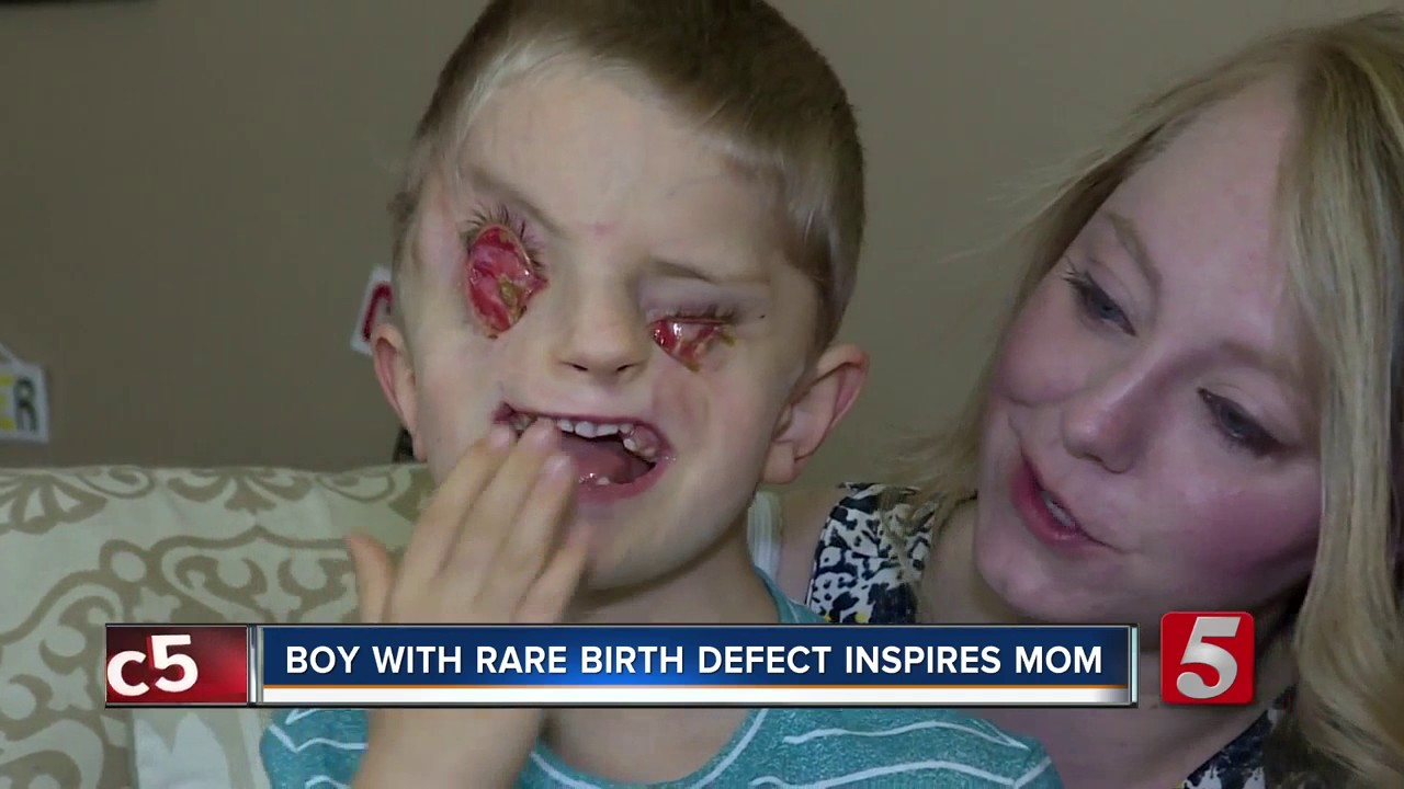 Facial birth defect pictures