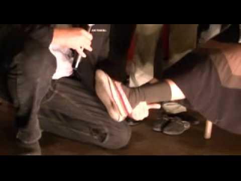 Дискова херния – Move&Flex