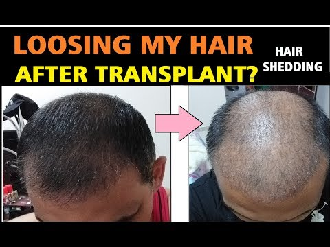minoxidil-hair-shedding-phase-after-hair-transplant-|-loosing-my-hair-again-|