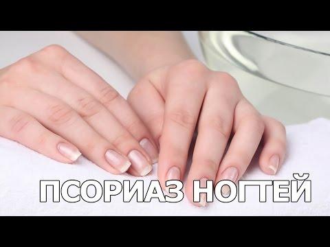Псориаз ногтей. Как проявляется псориаз на ногтях