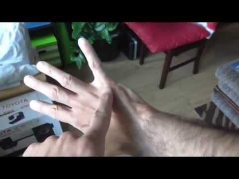 5th Metacarpal Broken Bone aka Boxer
