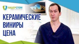 Керамические виниры цена. 💰 Стоимость установки виниров в Москве.