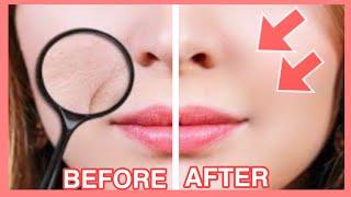 Smile Lines Facial Exercises & Massage (Nasolabial Folds/ Laugh Lines) Part4