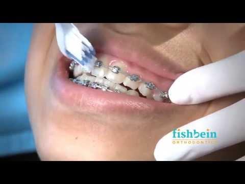 Orthodontic Home Care Instructions   Braces   Brushing