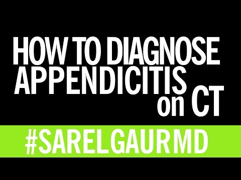 How to Diagnose Appendicitis on CT