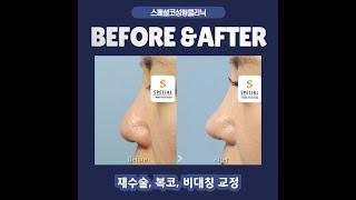 코재수술, 콧구멍비대칭, 복코 성형 B&A