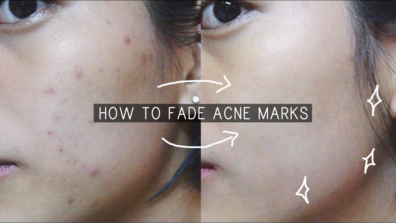 FADE ACNE SCARS IN 1 WEEK // klairs freshly juiced vitamin
