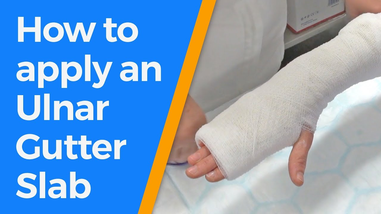 How To Apply An Ulnar Gutter Slab Youtube