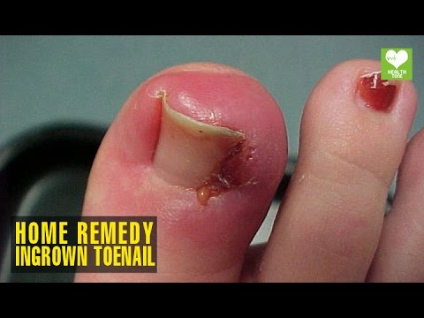 Home Remedies To Get Rid Of Ingrown Toenail | Health Tips ...