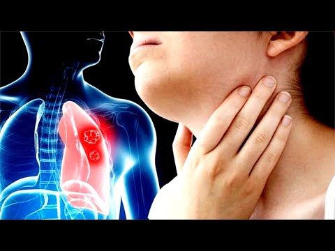 Early Signs And Symptoms Of Lung Cancer You Shouldn't Ignore!