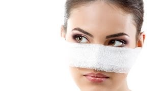 Nose Job Recovery Time | Plastic Surgery