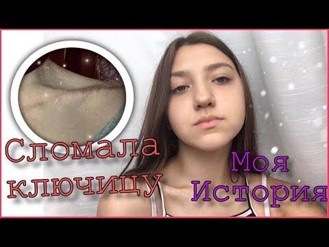 СЛОМАЛА КЛЮЧИЦУ// Моя история// Eva Onush