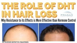 DHT and Hair Loss in Men - Why Reversing the Effects of DHT Can Work Better than Blocking It