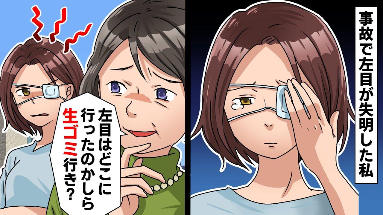 【LINE】交通事故で左目が失明した私に義母「左目はどこに行ったのかな?生ゴミ行きかしら?」私「食べちゃいました」思いっきり嫌がらせ返ししてやった結果ww【スカッとする話】