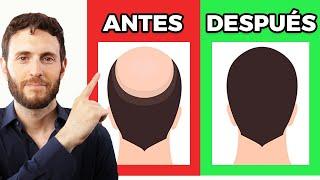 Cómo frenar la caída de pelo en hombres y mujeres