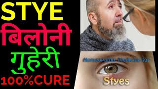 homeopathic treatment for Stye lower eye lid#ehomeovision#drrajeshmanghnani#livecasetaking