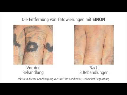 Sinon Rubin Laser Gegen Tattoos Und Pigmente