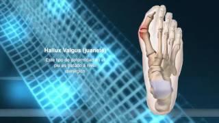 Del del el dolor medicina dedo para pie homeopática