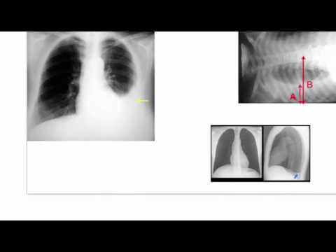 dressler-syndrome-(post-cardiac-injury-syndrome)