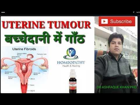 Uterine Fibroid And Its Homeopathic Treatment.