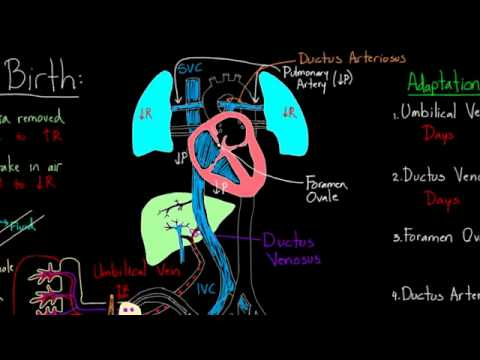 01   Fetal circulation   09   Baby circulation right after birth