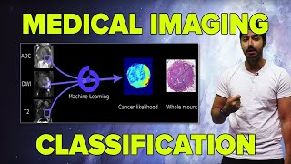 AI in Medicine | Medical Imaging Classification (TensorFlow Tutorial)