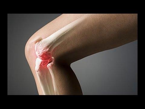 Болят суставы артроз коленного сустава титановый комплекс для лечения суставов