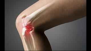 видео Боли в коленях после велосипеда (Подробнее об одной из причин)