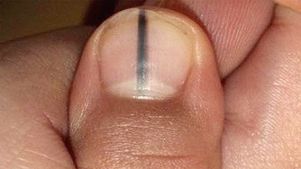 light black line on fingernail - 1280×720