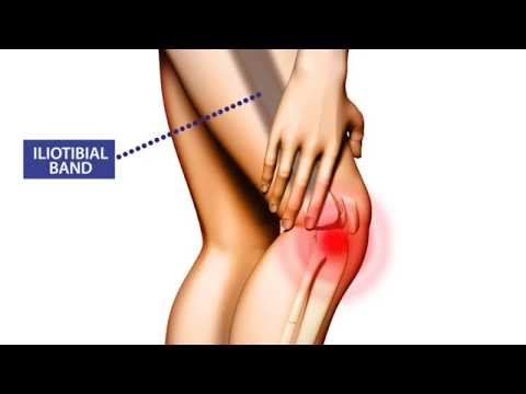 knee pain: symptoms, treatment, and prevention - youtube, Skeleton