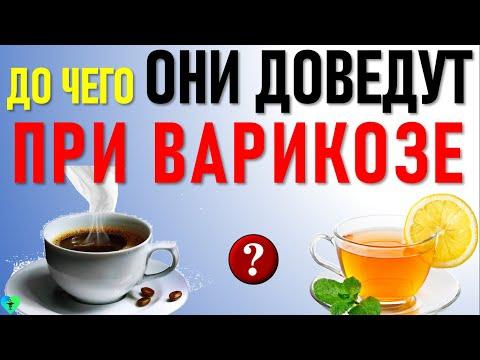 Можно ли при Варикозе Чай или Кофе? Что пить при варикозном расширении вен? | варикозе | питание | лечение | варикоз | нельзя | можно | диета | есть | что | при