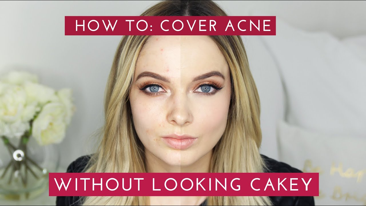 How to cover acne scars without looking cakey mypaleskin how to cover acne scars without looking cakey mypaleskin youtube ccuart Image collections