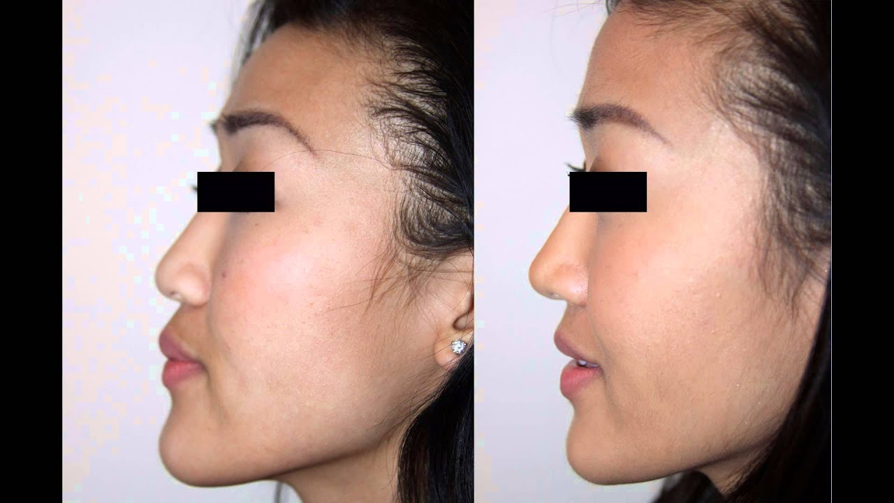 asian female rhinoplasty nyc before & after facial plastic surgeon
