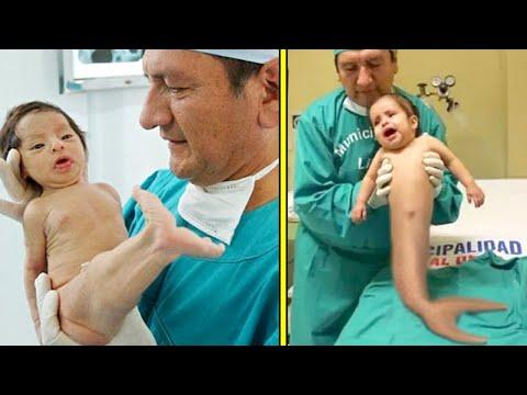 Milyonda Bir Görülen Özelliklerle Doğan 10 İnanılmaz Bebek
