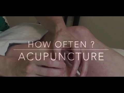 How Many Acupuncture Treatments Do I Need?