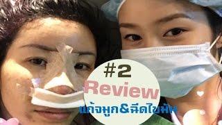 ศัลยกรรมเกาหลี โรงพยาบาลไอดี : รีวิวศัลยกรรมแก้จมูก+ฉีดไขมันใบหน้า ตอน 2/3(ผ่าตัด)