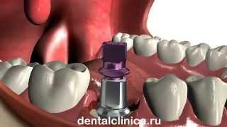 Лечение зубов протезирование имплантация приятные цены European Clinic of Aesthetic Dentistry(, 2014-03-25T19:45:54.000Z)