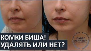 видео 9 мифов о перегородках