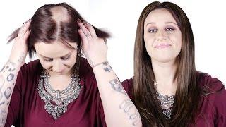 Alopecia Hidden Crown Miracle In Under A Minute! - Hidden Crown