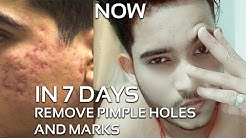 hqdefault - How To Reduce Holes Due Pimples