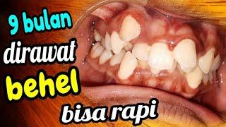9 bulan perawatan behel gigi berantakan menjadi rapi, dokter gigi Jogja terdekat di hati